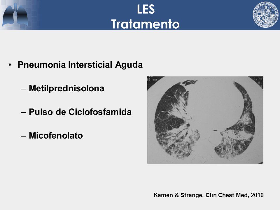 LES Tratamento Pneumonia Intersticial Aguda –Metilprednisolona –Pulso de Ciclofosfamida –Micofenolato Kamen & Strange. Clin Chest Med, 2010