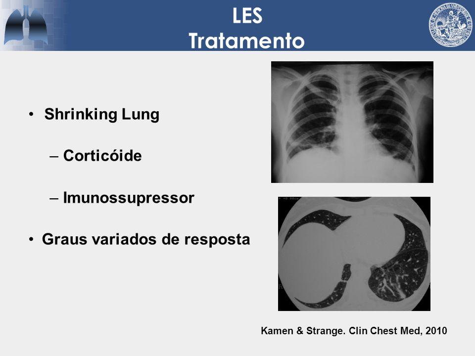 LES Tratamento Shrinking Lung –Corticóide –Imunossupressor Graus variados de resposta Kamen & Strange. Clin Chest Med, 2010