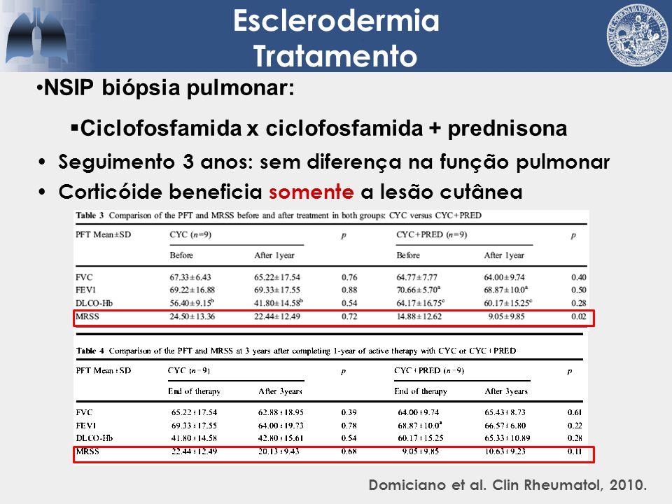 Seguimento 3 anos: sem diferença na função pulmonar Corticóide beneficia somente a lesão cutânea Esclerodermia Tratamento Domiciano et al. Clin Rheuma