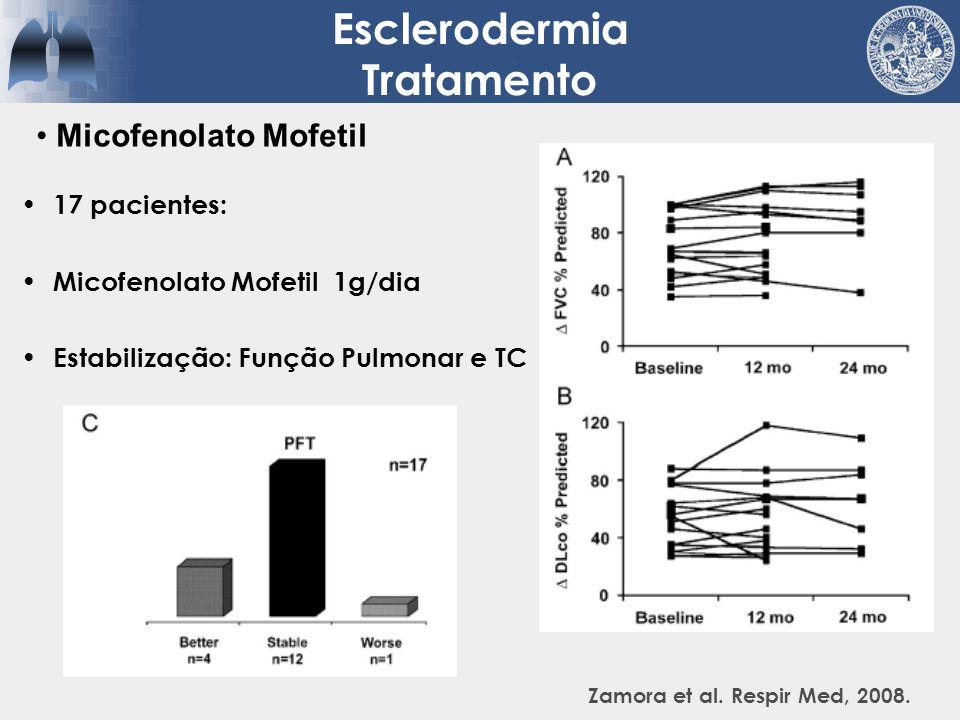 17 pacientes: Micofenolato Mofetil 1g/dia Estabilização: Função Pulmonar e TC Esclerodermia Tratamento Zamora et al. Respir Med, 2008. Micofenolato Mo