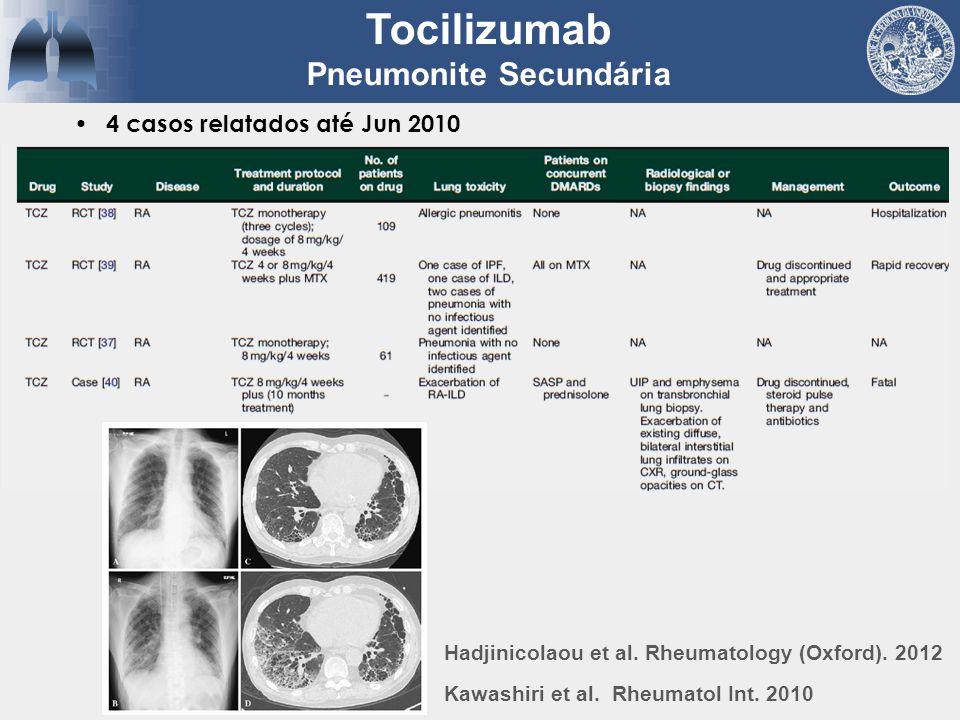 4 casos relatados até Jun 2010 Tocilizumab Pneumonite Secundária Hadjinicolaou et al. Rheumatology (Oxford). 2012 Kawashiri et al. Rheumatol Int. 2010