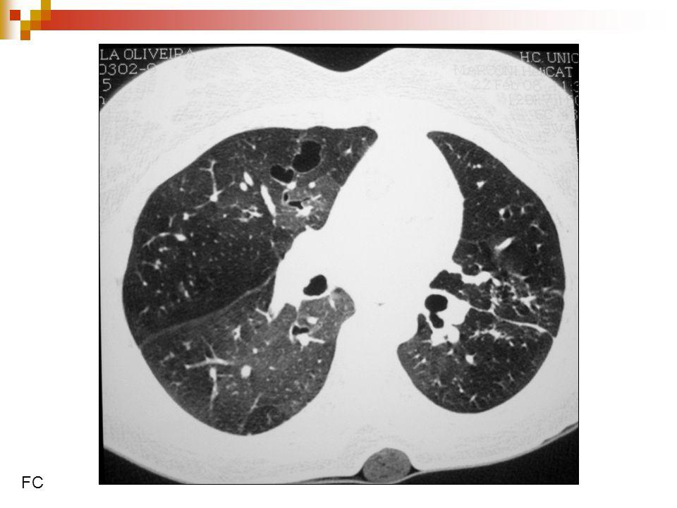 Fatores associados com a queda da função pulmonar em pacientes bronquectásicos (não-FC) adultos 76 pacientes, 48% de homens, idade 69,9 anos, seguidos por 2 anos 76 pacientes, 48% de homens, idade 69,9 anos, seguidos por 2 anos Queda de 52mL de VEF1/ano Queda de 52mL de VEF1/ano Colonização por Pseudomonas (OD 30,4; p=0,005) Colonização por Pseudomonas (OD 30,4; p=0,005) Mais de 1,5 exacerbação grave /ano(OD 6,9; p=0,014) Mais de 1,5 exacerbação grave /ano(OD 6,9; p=0,014) Mais inflamação sistêmica(OD 3,1; p=0,023) Mais inflamação sistêmica(OD 3,1; p=0,023) Martinez-Garcia et al, CHEST 2007.
