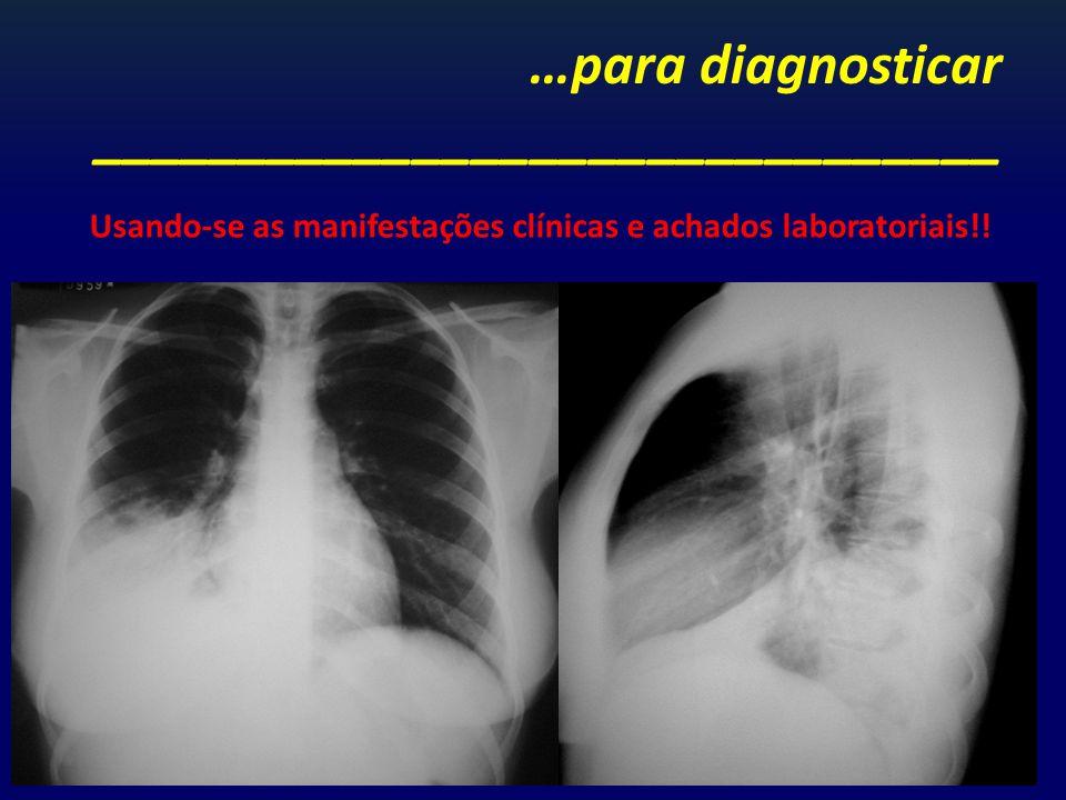 …para diagnosticar _______________________________ Usando-se as manifestações clínicas e achados laboratoriais!!