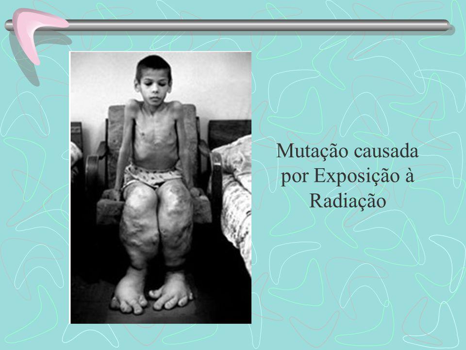 Mutação causada por Exposição à Radiação