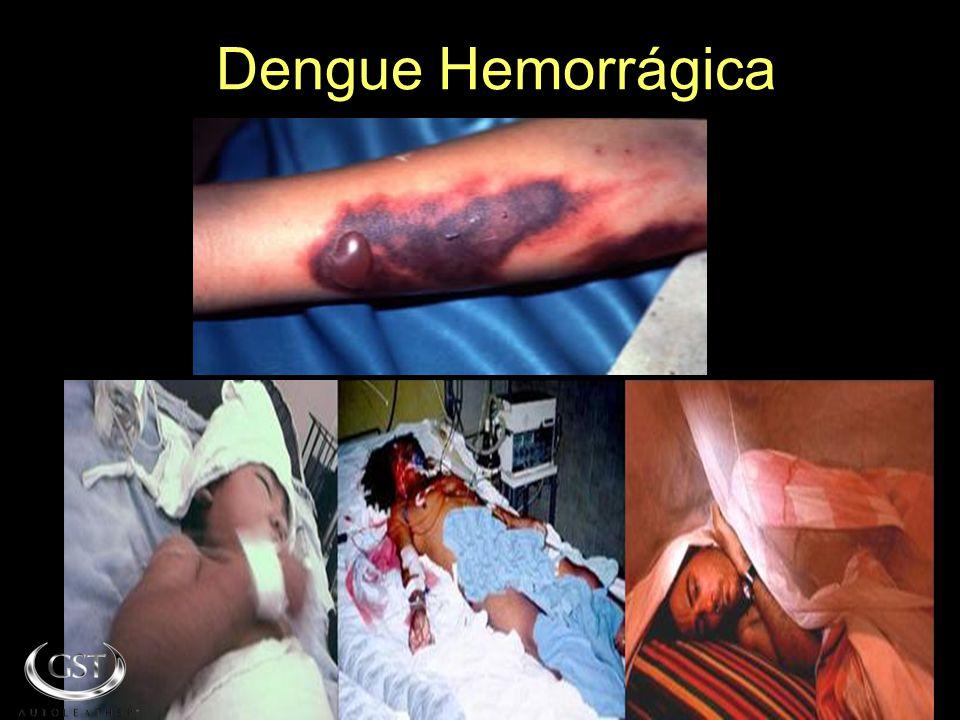 SE O QUE FOI DITO NÃO TE FAZ REFLETIR SOBRE ESTE PROBLEMA OBSERVA O QUE TE APRESENTAMOS A SEGUIR: Dengue Hemorrágica
