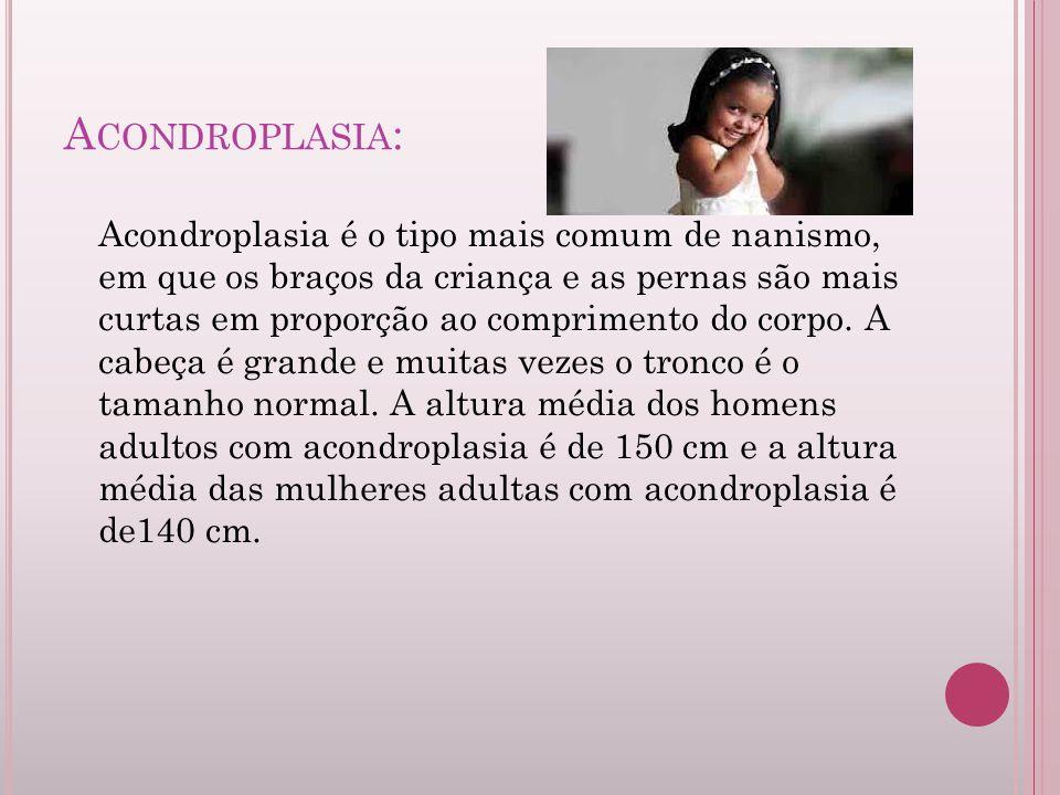 A CONDROPLASIA : Acondroplasia é o tipo mais comum de nanismo, em que os braços da criança e as pernas são mais curtas em proporção ao comprimento do