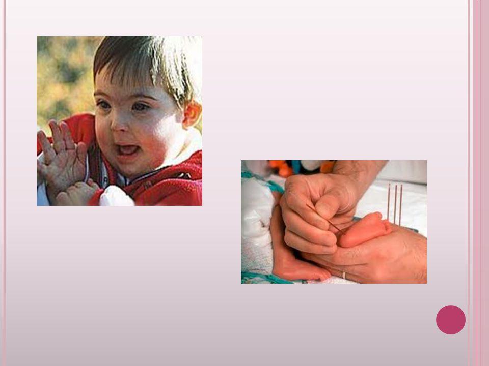 A LBINISMO : Existem três tipos principais de albinismo: o tipo 1 é caracterizado pelos defeitos que afetam a produção da melanina (cabelo branco, pele rosada, olhos cor violeta ou azuis, ausência de sardas).