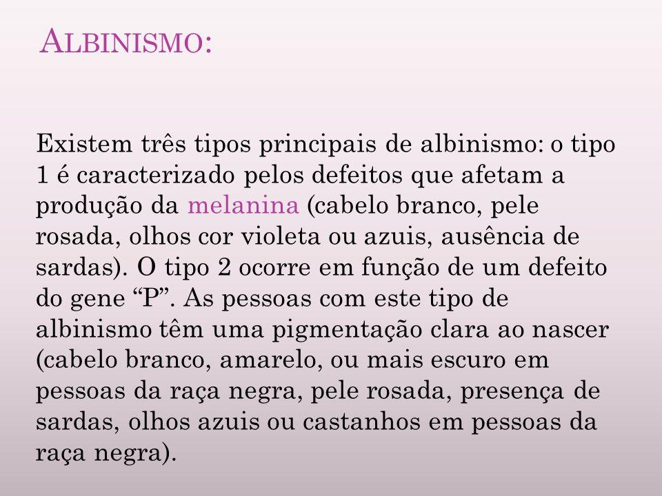A LBINISMO : Existem três tipos principais de albinismo: o tipo 1 é caracterizado pelos defeitos que afetam a produção da melanina (cabelo branco, pel