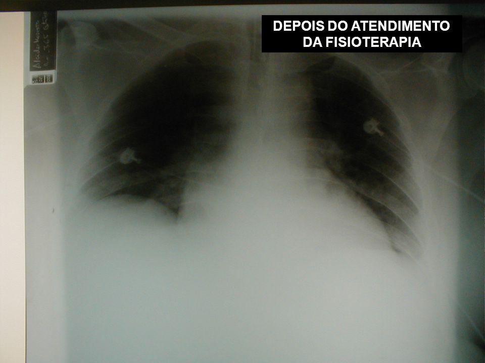 DEPOIS DO ATENDIMENTO DA FISIOTERAPIA
