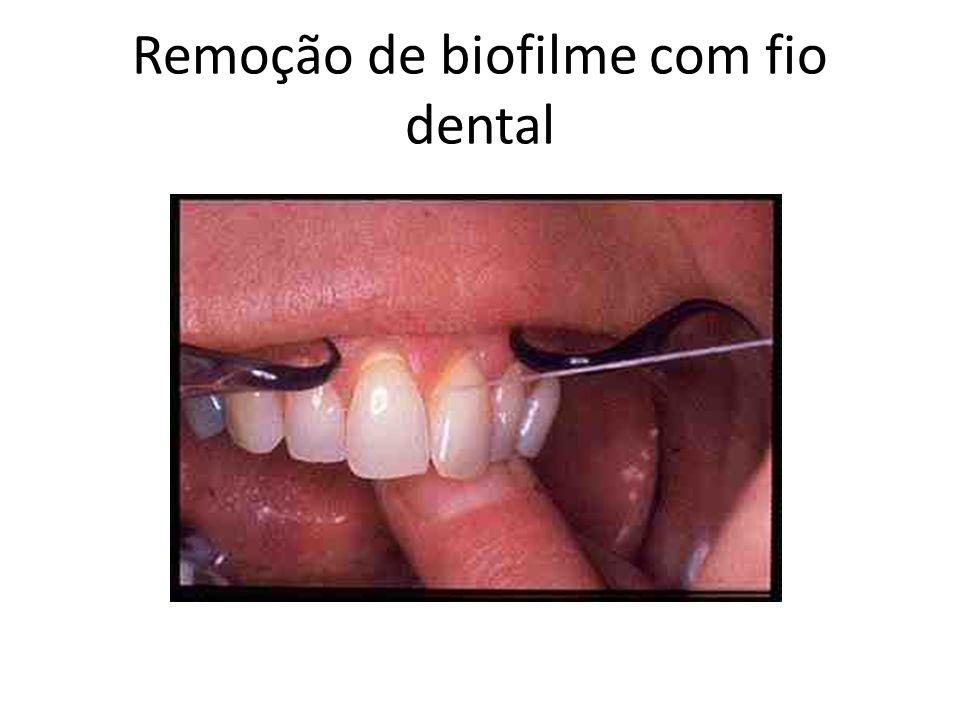Remoção de biofilme com fio dental