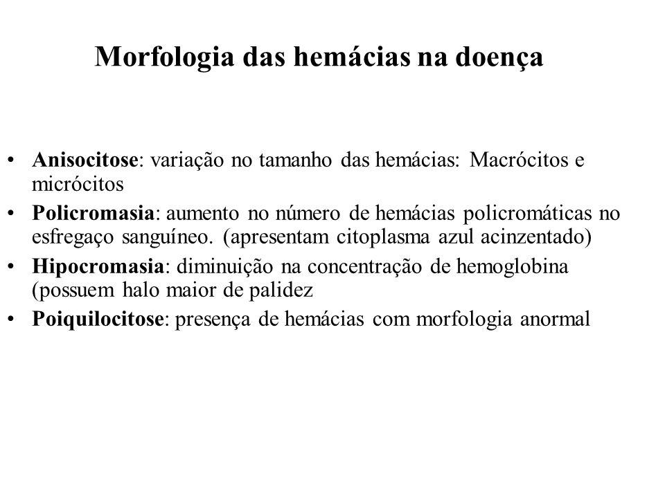 Morfologia das hemácias na doença Anisocitose: variação no tamanho das hemácias: Macrócitos e micrócitos Policromasia: aumento no número de hemácias p