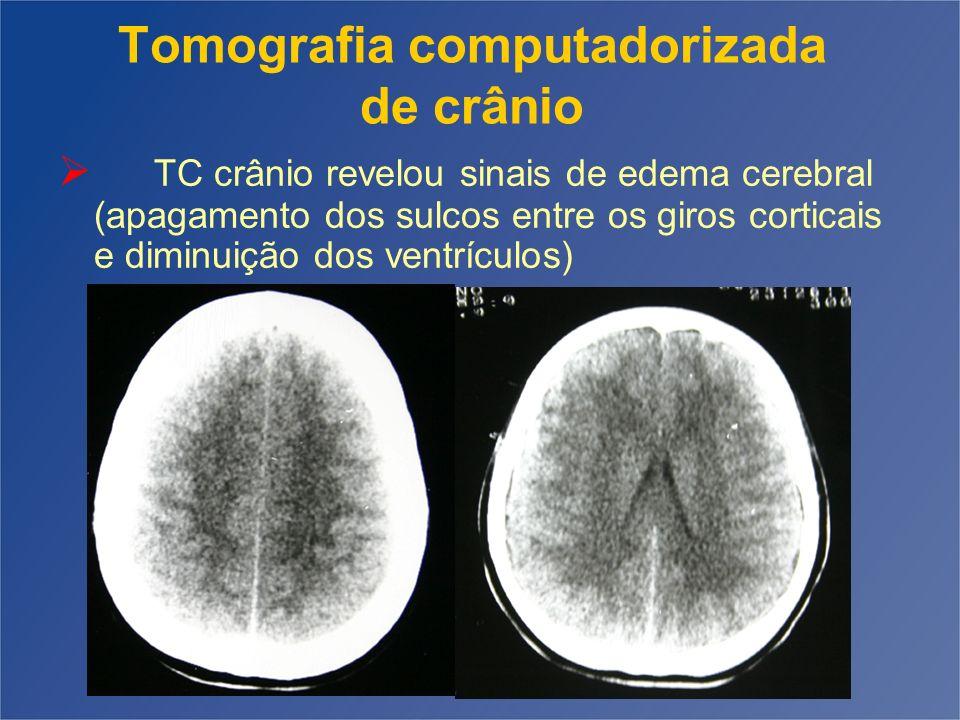 Tomografia computadorizada de crânio TC crânio revelou sinais de edema cerebral (apagamento dos sulcos entre os giros corticais e diminuição dos ventr