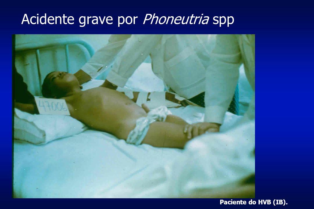 Acidente grave por Phoneutria spp Paciente do HVB (IB).