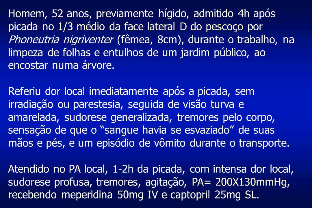 Homem, 52 anos, previamente hígido, admitido 4h após picada no 1/3 médio da face lateral D do pescoço por Phoneutria nigriventer (fêmea, 8cm), durante