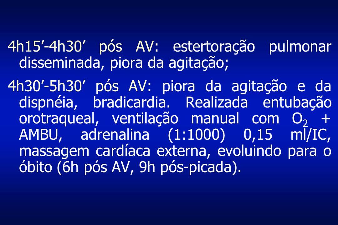 4h15-4h30 pós AV: estertoração pulmonar disseminada, piora da agitação; 4h30-5h30 pós AV: piora da agitação e da dispnéia, bradicardia. Realizada entu
