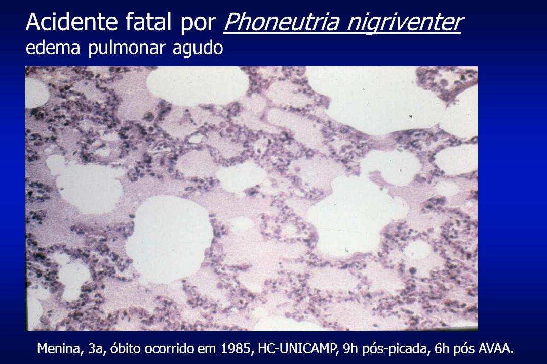 Acidente fatal por Phoneutria nigriventer edema pulmonar agudo Menina, 3a, óbito ocorrido em 1985, HC-UNICAMP, 9h pós-picada, 6h pós AVAA.