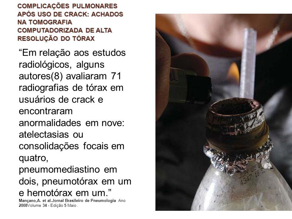 COMPLICAÇÕES PULMONARES APÓS USO DE CRACK: ACHADOS NA TOMOGRAFIA COMPUTADORIZADA DE ALTA RESOLUÇÃO DO TÓRAX Em relação aos estudos radiológicos, algun
