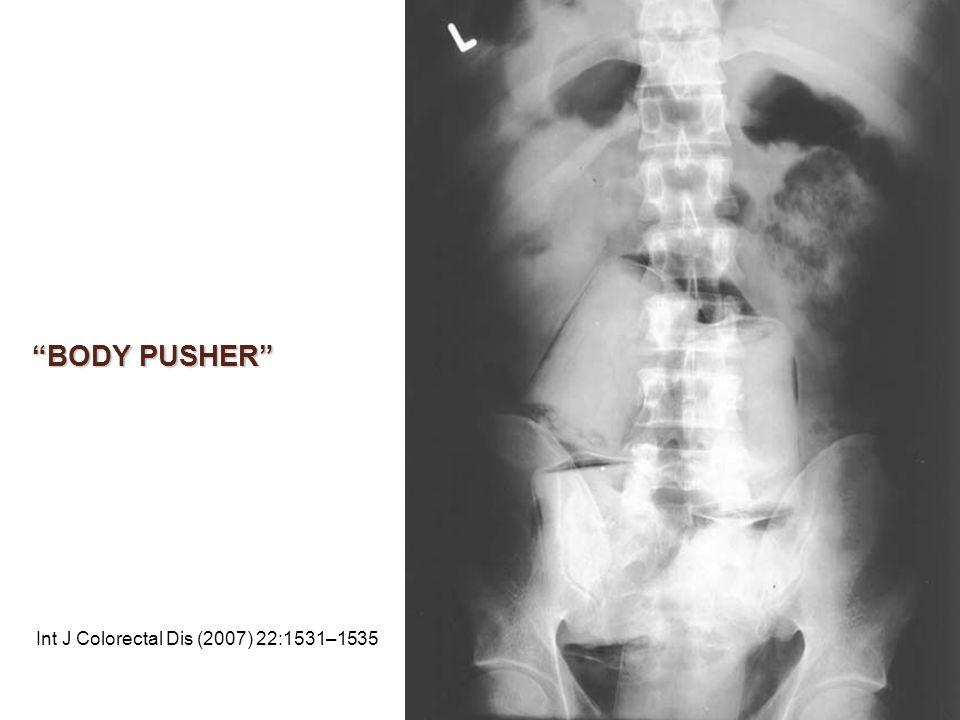 BODY PUSHER Int J Colorectal Dis (2007) 22:1531–1535
