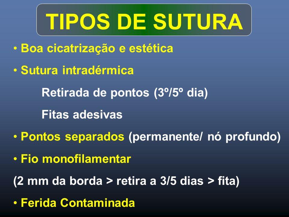 TIPOS DE SUTURA Boa cicatrização e estética Sutura intradérmica Retirada de pontos (3º/5º dia) Fitas adesivas Pontos separados (permanente/ nó profund