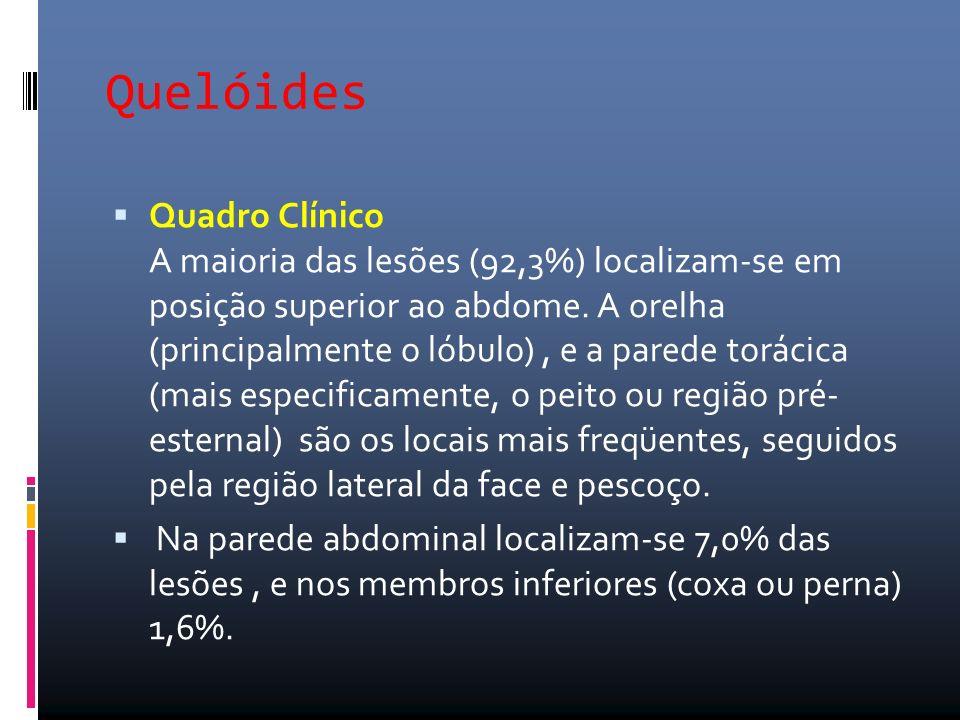 Quelóides Quadro Clínico A maioria das lesões (92,3%) localizam-se em posição superior ao abdome. A orelha (principalmente o lóbulo), e a parede torác