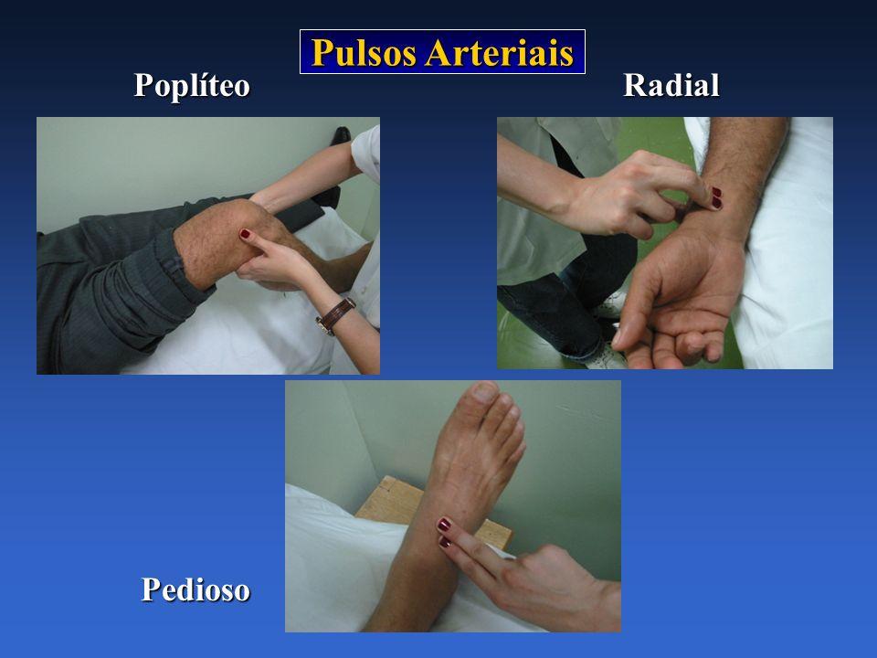 Pulsos Arteriais PoplíteoRadial Pedioso