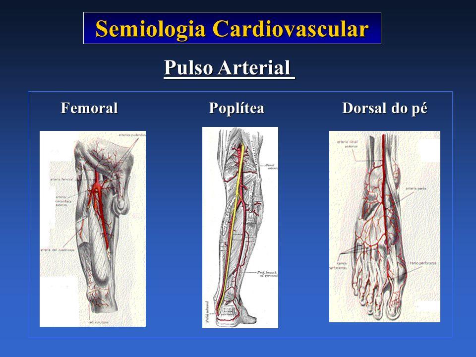 Semiologia Cardiovascular Pulso Arterial Femoral Poplítea Dorsal do pé Femoral Poplítea Dorsal do pé