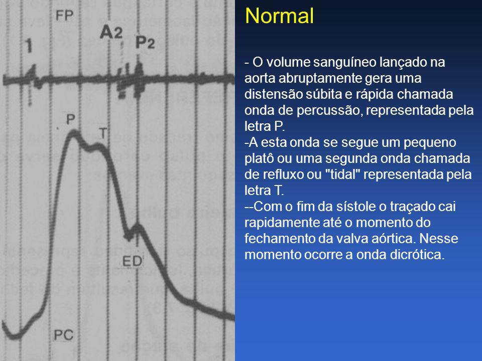 Normal - O volume sanguíneo lançado na aorta abruptamente gera uma distensão súbita e rápida chamada onda de percussão, representada pela letra P. -A