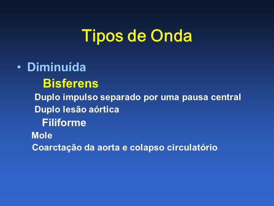 Tipos de Onda Diminuída Bisferens Duplo impulso separado por uma pausa central Duplo lesão aórtica Filiforme Mole Coarctação da aorta e colapso circul