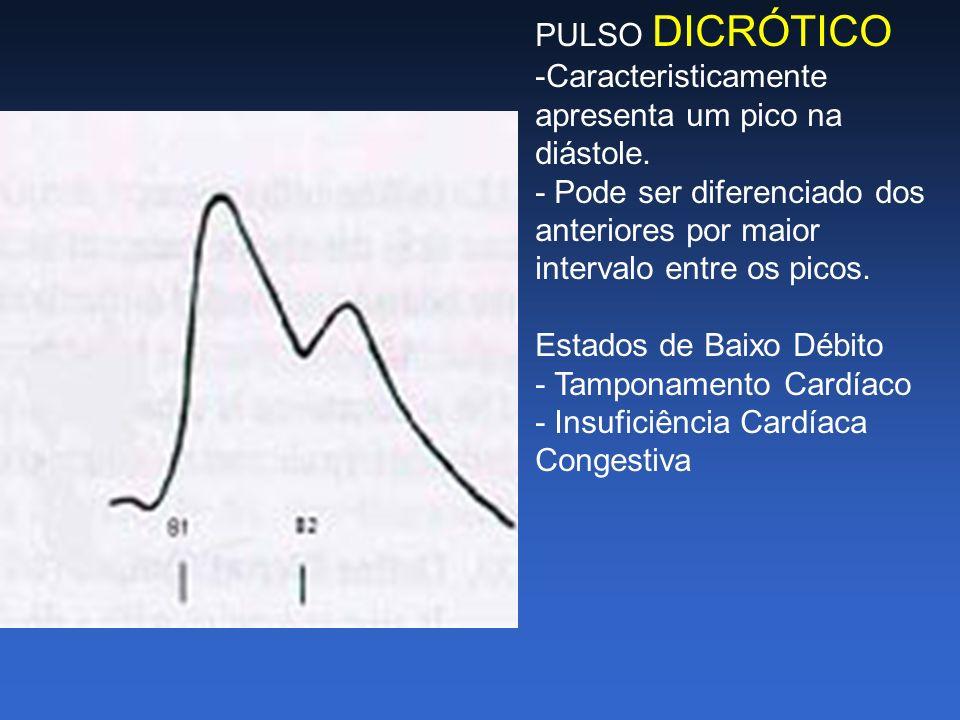 PULSO DICRÓTICO -Caracteristicamente apresenta um pico na diástole. - Pode ser diferenciado dos anteriores por maior intervalo entre os picos. Estados