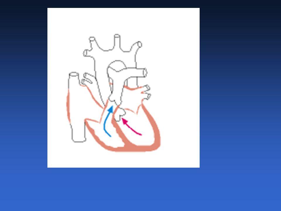 Pulso Alternante · alterna intensidade maior e menor com a mesma freqüência · mais perceptível no pulso radial · um dos sinais mais precoces de disfunção ventricular · alteração da intensidade das bulhas e dos sopros · sensibilizado pela posição sentada ou em pé · quanto mais intensos os achados, maior a disfunção · insuficiência cardíaca congestiva