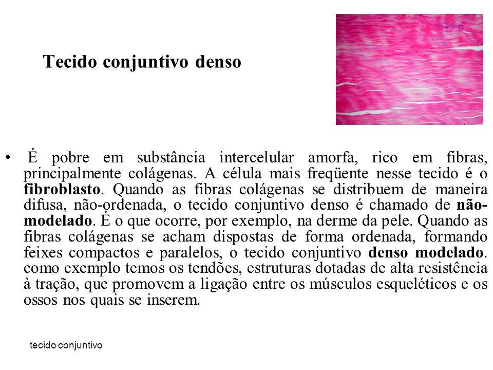 tecido conjuntivo Tecido conjuntivo denso É pobre em substância intercelular amorfa, rico em fibras, principalmente colágenas. A célula mais freqüente