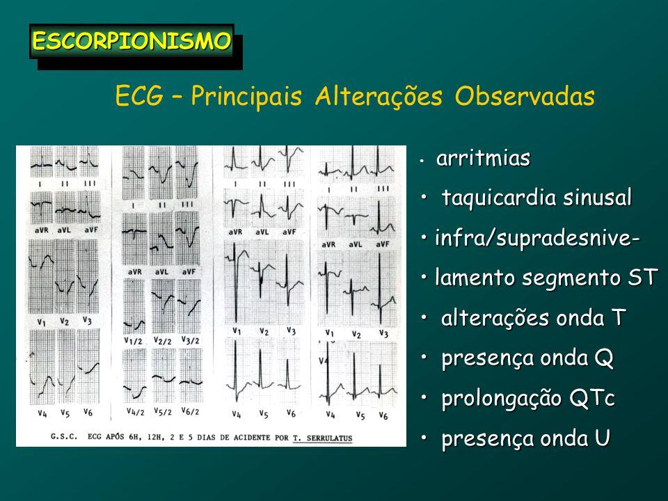 ECG – Principais Alterações Observadas arritmias taquicardia sinusal taquicardia sinusal infra/supradesnive- infra/supradesnive- lamento segmento ST l