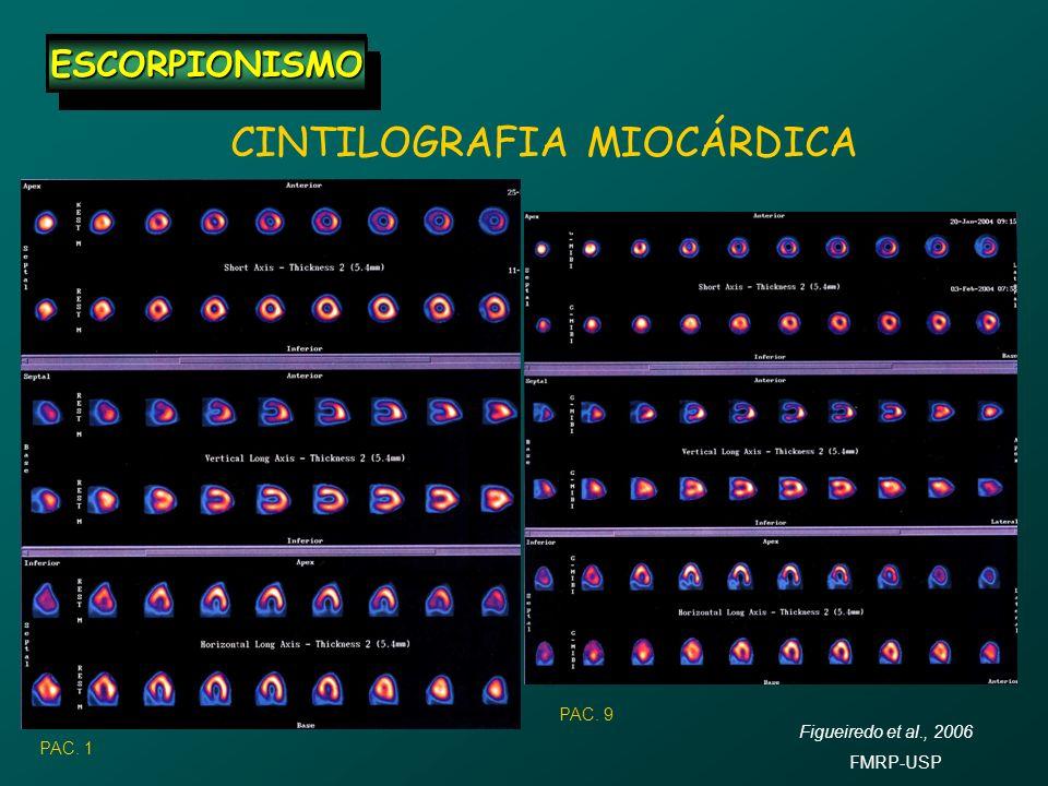 ESCORPIONISMOESCORPIONISMO ESCORPIONISMOESCORPIONISMO CINTILOGRAFIA MIOCÁRDICA PAC. 1 PAC. 9 Figueiredo et al., 2006 FMRP-USP