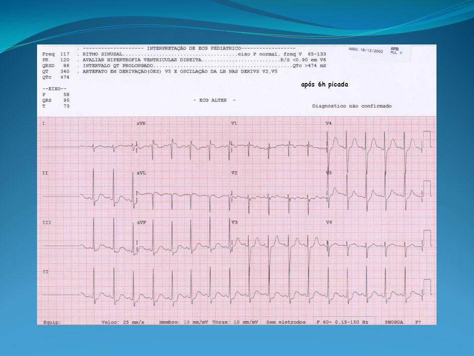Exames Laboratoriais Iniciais G 449 CK-MB 75 TGO 30 Amilase 299 K 2,9 GB 33900 Lactato 8,9 ECO 8h após acidente: FE=22%.