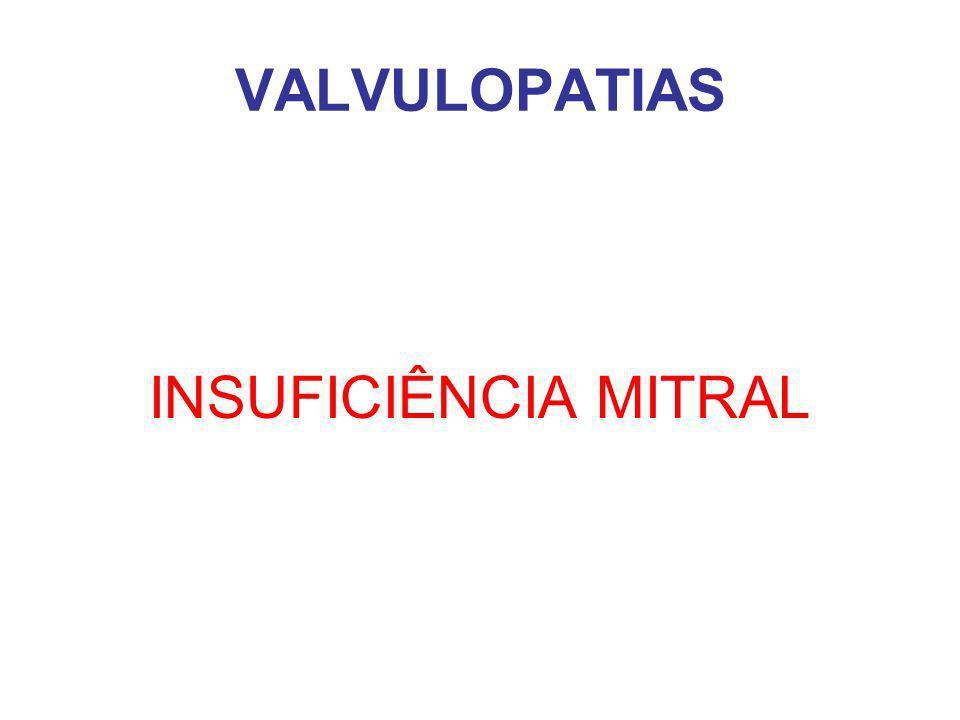 VALVULOPATIAS INSUFICIÊNCIA MITRAL