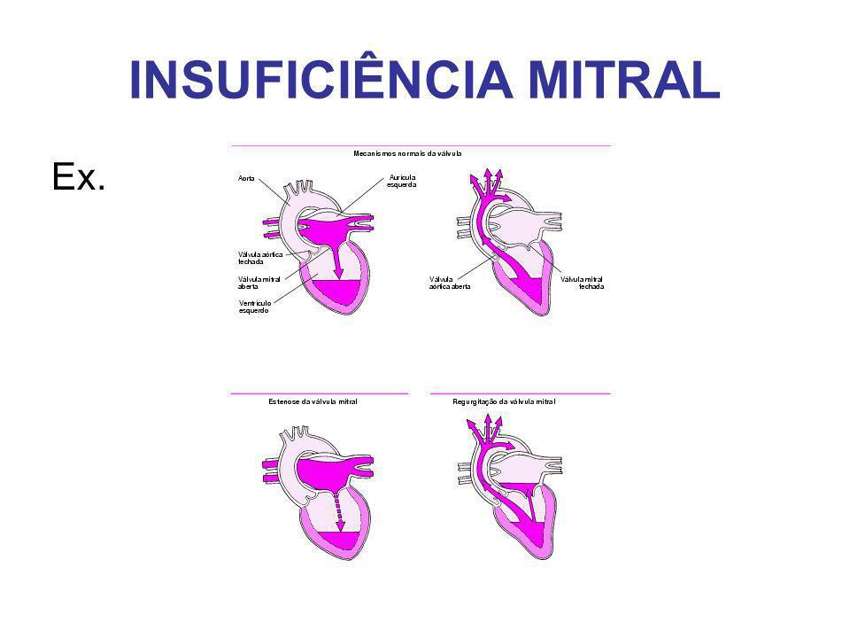 INSUFICIÊNCIA MITRAL Ex.