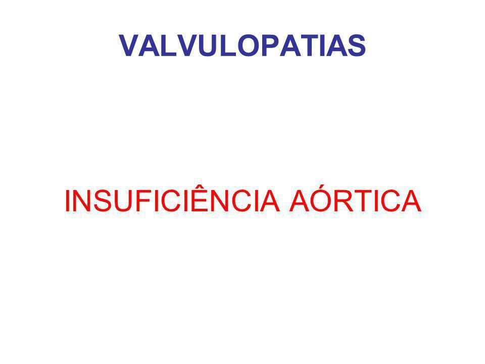 VALVULOPATIAS INSUFICIÊNCIA AÓRTICA