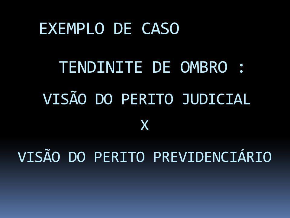 EXEMPLO DE CASO TENDINITE DE OMBRO : VISÃO DO PERITO JUDICIAL X VISÃO DO PERITO PREVIDENCIÁRIO