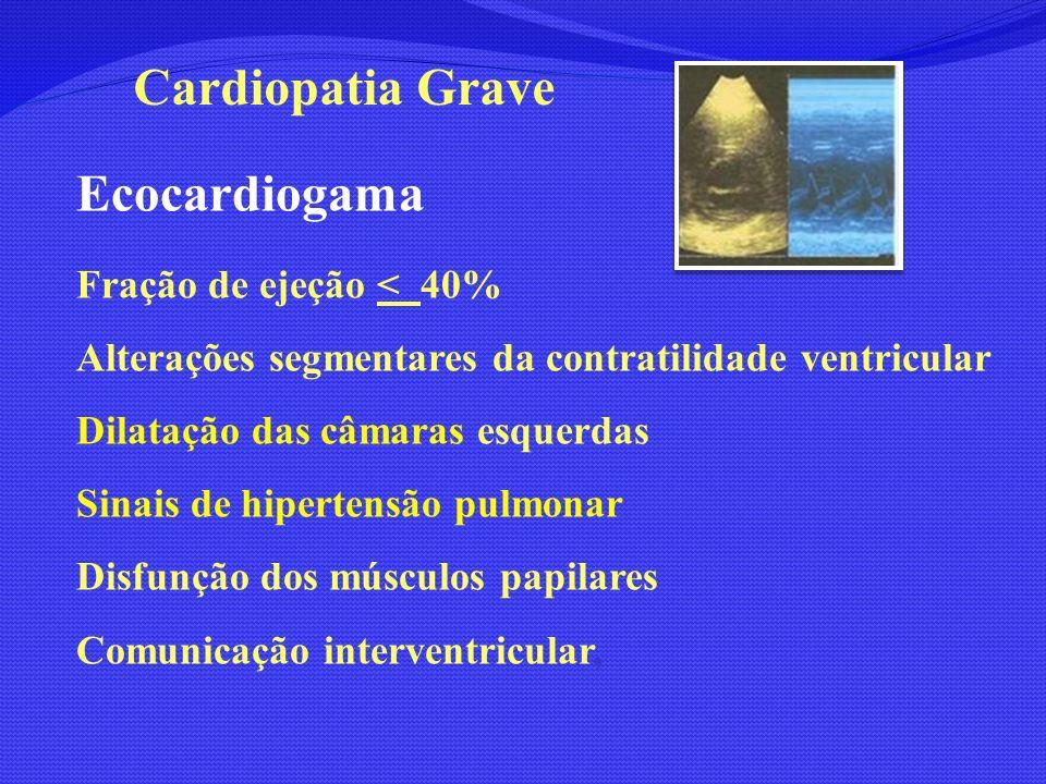 Ecocardiogama Fração de ejeção < 40% Alterações segmentares da contratilidade ventricular Dilatação das câmaras esquerdas Sinais de hipertensão pulmon