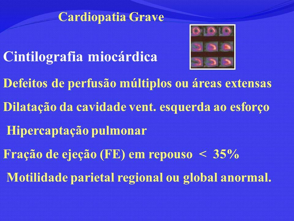 Cintilografia miocárdica Defeitos de perfusão múltiplos ou áreas extensas Dilatação da cavidade vent. esquerda ao esforço Hipercaptação pulmonar Fraçã