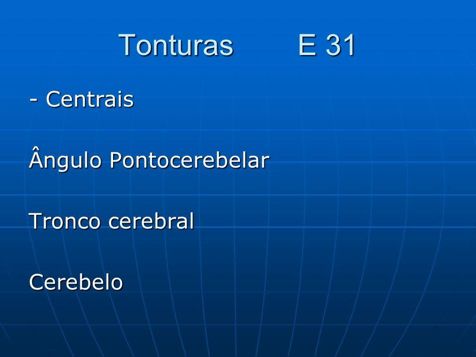 Tonturas E 31 - Centrais Ângulo Pontocerebelar Tronco cerebral Cerebelo