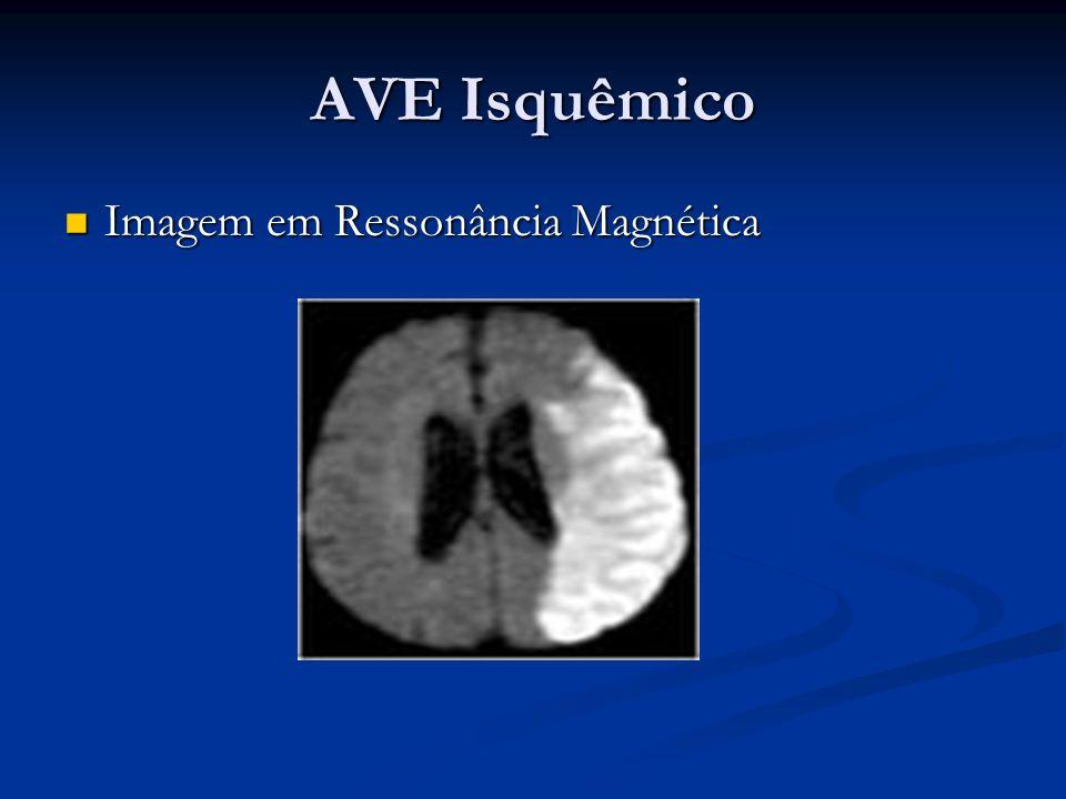 AVE Isquêmico Imagem em Ressonância Magnética Imagem em Ressonância Magnética
