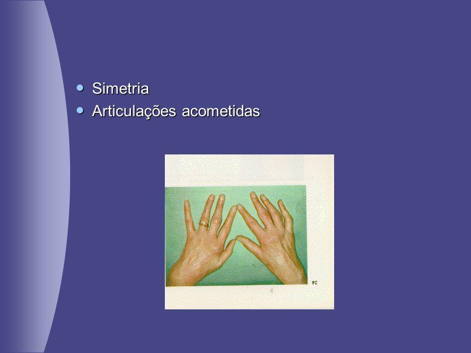 Simetria Simetria Articulações acometidas Articulações acometidas