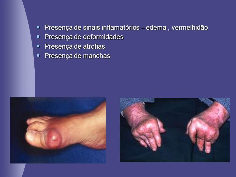 Presença de sinais inflamatórios – edema, vermelhidão Presença de sinais inflamatórios – edema, vermelhidão Presença de deformidades Presença de defor