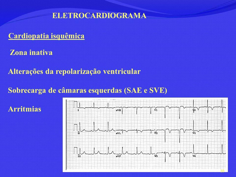 ELETROCARDIOGRAMA Cardiopatia isquêmica Zona inativa Alterações da repolarização ventricular Sobrecarga de câmaras esquerdas (SAE e SVE) Arritmias 10
