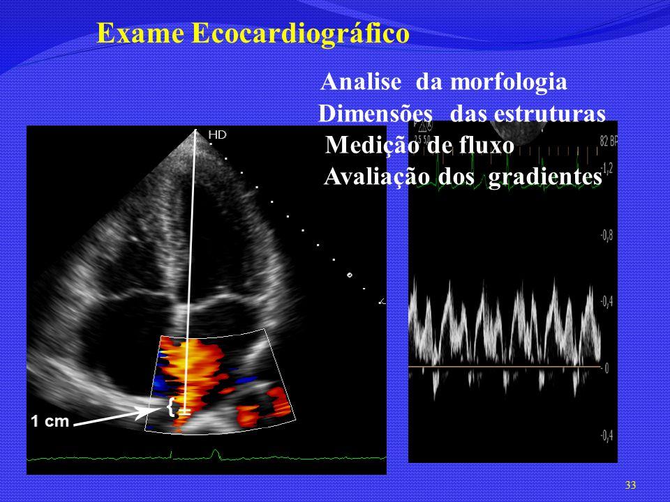 Analise da morfologia Dimensões das estruturas Medição de fluxo Avaliação dos gradientes Exame Ecocardiográfico 33
