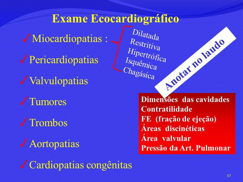 Miocardiopatias : Pericardiopatias Valvulopatias Tumores Trombos Aortopatias Cardiopatias congênitas 37 Exame Ecocardiográfico Dilatada Restritiva Hip