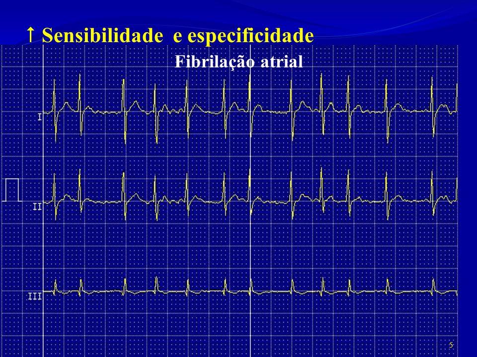 Sensibilidade e especificidade Fibrilação atrial 5
