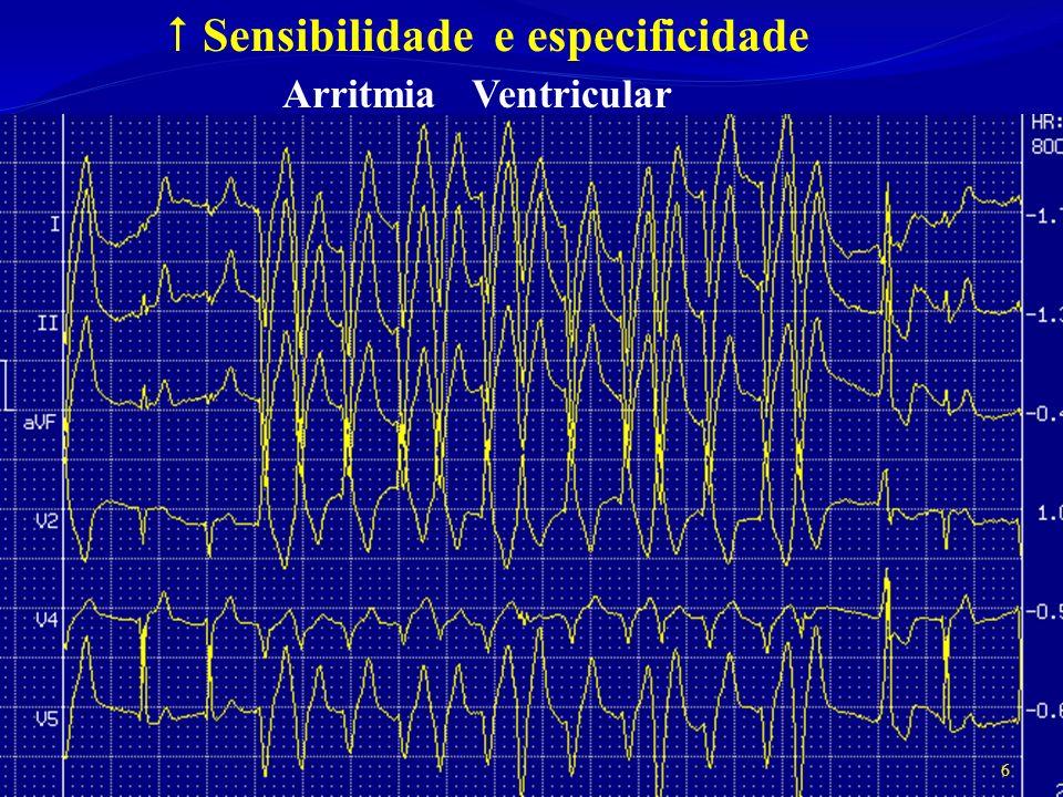 Sensibilidade e especificidade Arritmia Ventricular 6