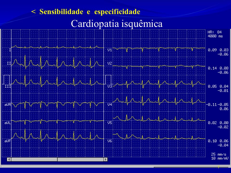 Cardiopatia isquêmica 7 < Sensibilidade e especificidade